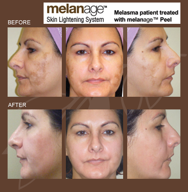 Melanage MiniPeel AT